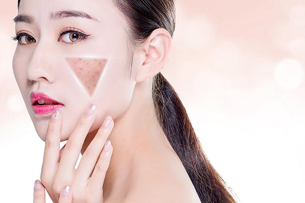 肌肤受损,痘疤痘印如何修复?